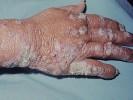 Лепра болезнь фото