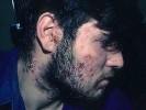 Стрептодермия на лице
