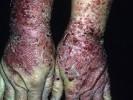 Стрептодермия на руках фото