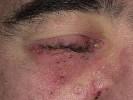 Стрептодермия на глазах