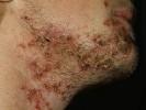Стрептодермия на подбородке