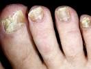 Поражение грибком ногтей фото