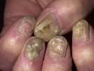 Грибок ногтей на руках фотографии