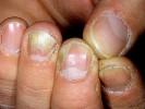 Онихомикоз ногтей рук