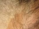 Эритразма паховая фото