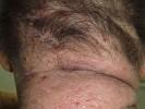 Атопический дерматит на шее