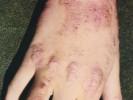 Атопический дерматит на пальцах