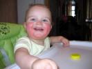 Атопический дерматит младенченская форма