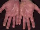 Экзема на руках симптомы