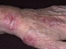 Псориаз кистей рук симптомы фото