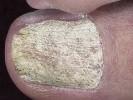 Как выглядит псориаз ногтя