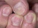Псориаз ногтевой пластины фото