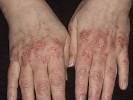 Как выглядит псориаз кистей рук